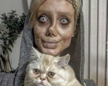 Jovem Submete-se a 50 Cirurgias Para Ficar Parecida Com Angelina Jolie 1