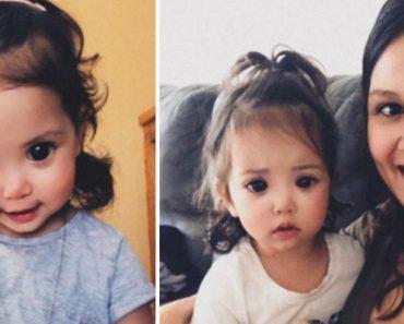 Rara Síndrome Genética Faz Com Que Esta Menina Tenha Olhos Grandes e Expressivos 5