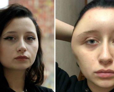 Jovem Fica Irreconhecível Após Reação Alérgica a Tinta De Cabelo 4