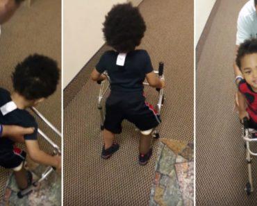 Menino De 2 Anos Entusiasma-se Por Voltar a Andar Depois De Ter Perna Amputada 8