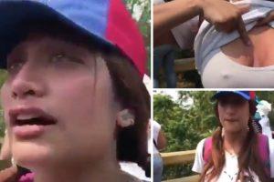 """Jovem Venezuelana Ferida Durante Protestos Torna-se Viral Pelo """"Motivo"""" Errado 10"""