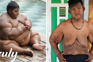 """Criança """"Mais Gorda Do Mundo"""" Perde Metade Do Peso e Está (Quase) Irreconhecível 7"""