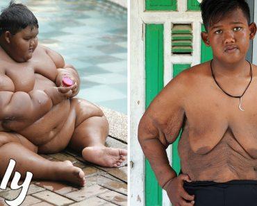 """Criança """"Mais Gorda Do Mundo"""" Perde Metade Do Peso e Está (Quase) Irreconhecível 1"""