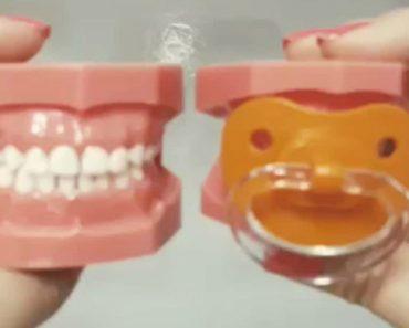 O Efeito Das Chupetas Nos Dentes Das Crianças 7